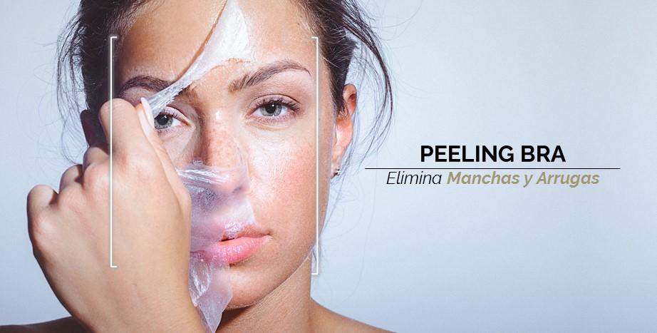Peeling BRA