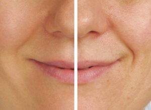 Removing skin blemishes