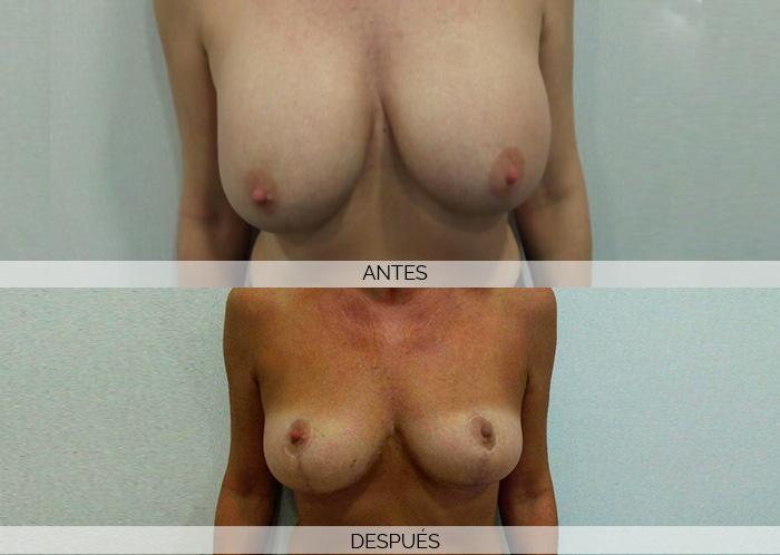 reducción-senos