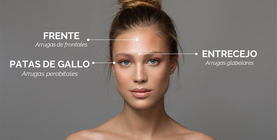 zonas botox