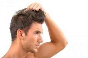 fármacos anticaída del cabello