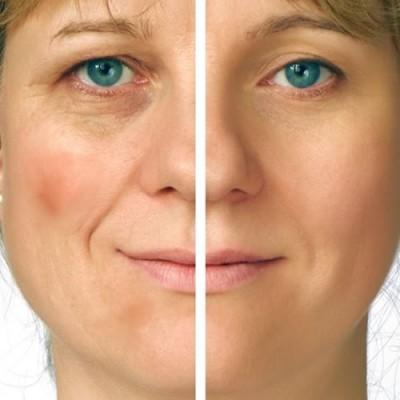 eliminar manchas piel
