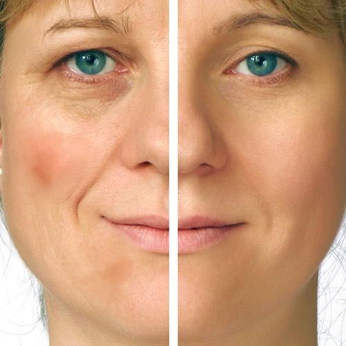 6 tratamientos para eliminar las manchas en la piel