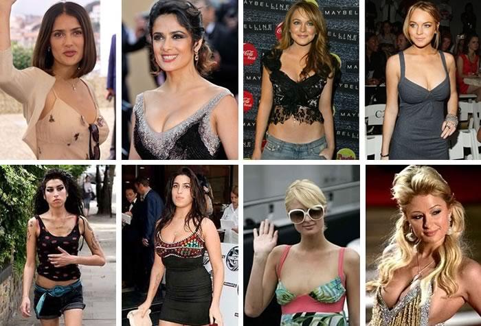 aumento de senos por razones estéticas