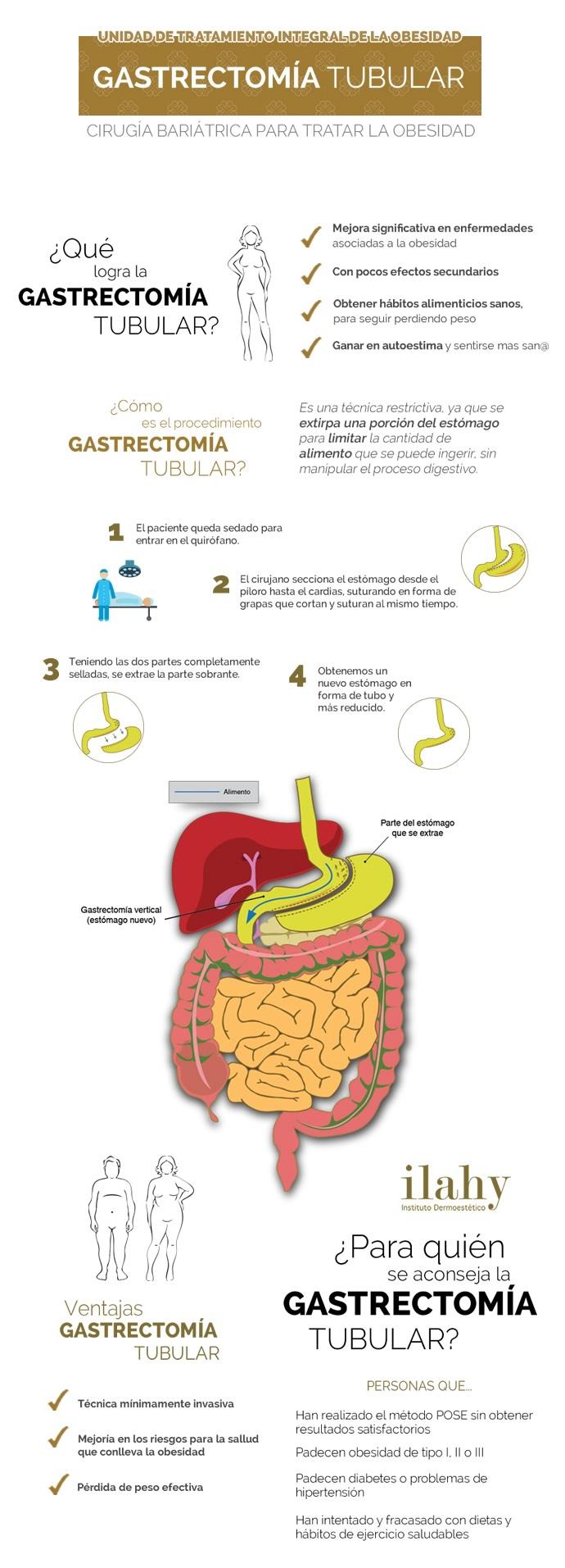 gastrectomia cirugia perder peso