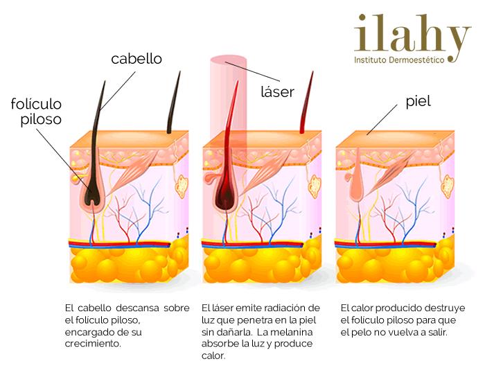 depilacion alejandrita o diodo