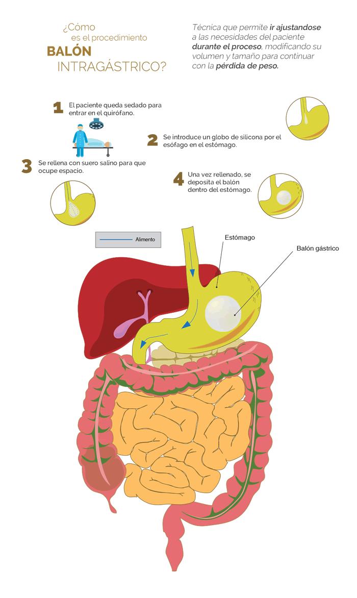 colocacion balon gastrico