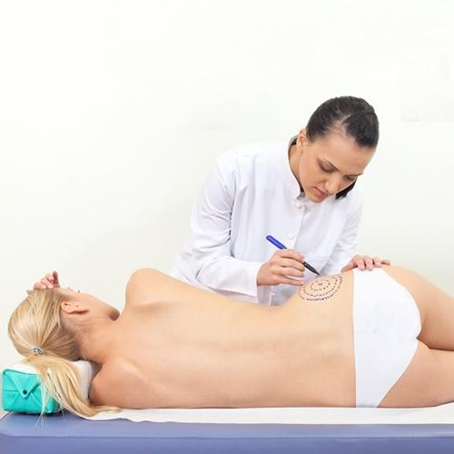 Carboxiterapia para eliminar la grasa localizada