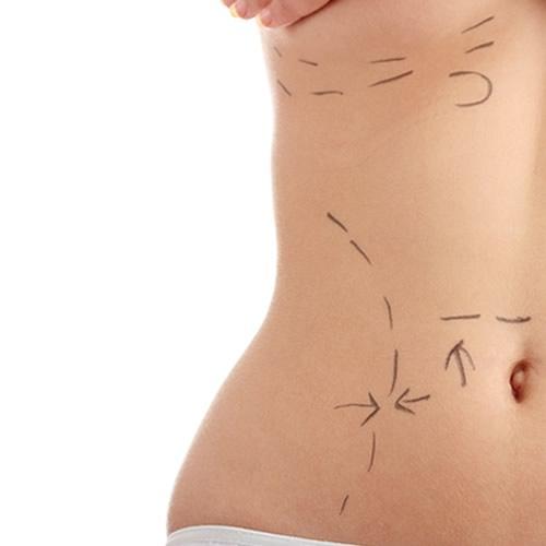 ¿Cuánto cuesta una liposucción?