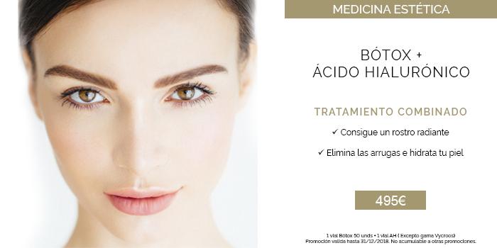 botox y acido hialuronico