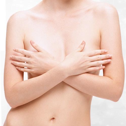Pechos tuberosos: ¿cómo corregir esta anomalía en las mamas?