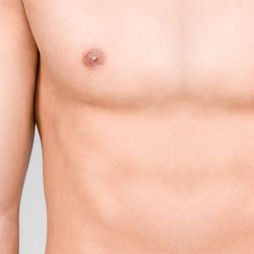 Ginecomastia, el crecimiento anómalo del pecho en el hombre