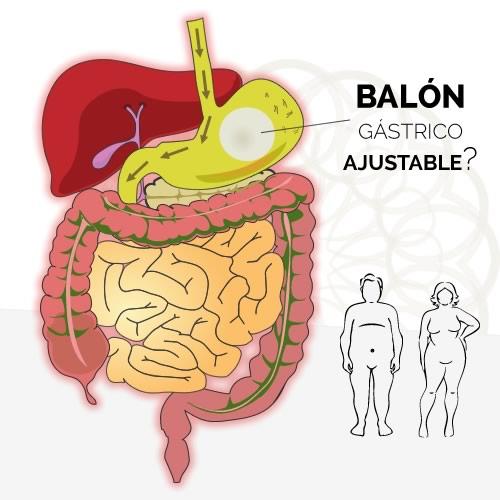 Balón gástrico ajustable: ¿cómo funciona?