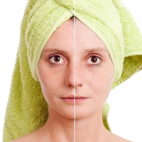 IPL, luz pulsada intensa: recupera la belleza de tu piel
