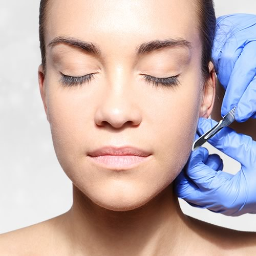 Otoplastia, la operación de orejas de soplillo