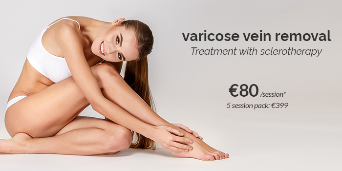 varicose veins price 2021