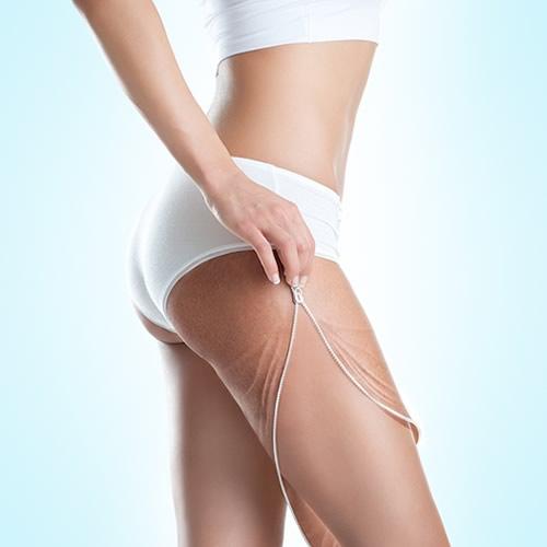 Combatir la celulitis con lo último en tecnología médico-estética