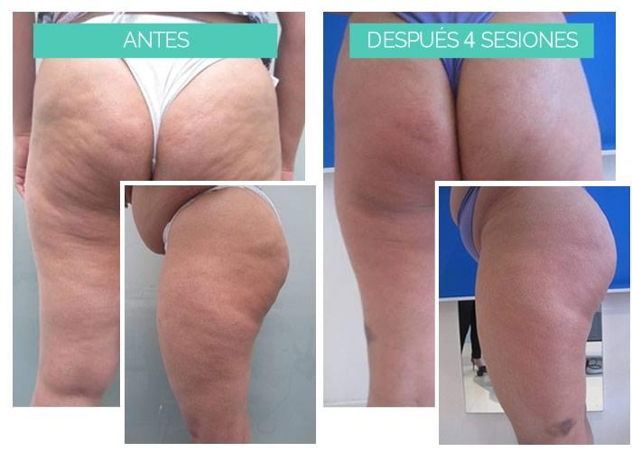 antes y después tratamiento celulitis