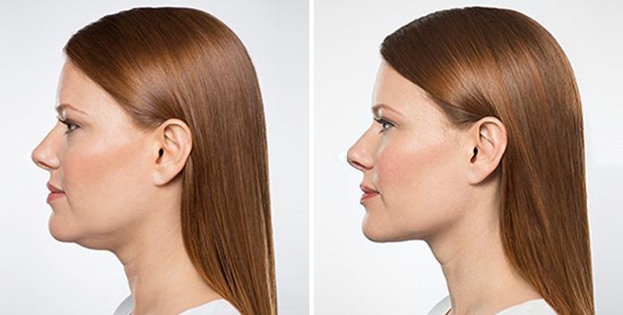 belkyra antes y después