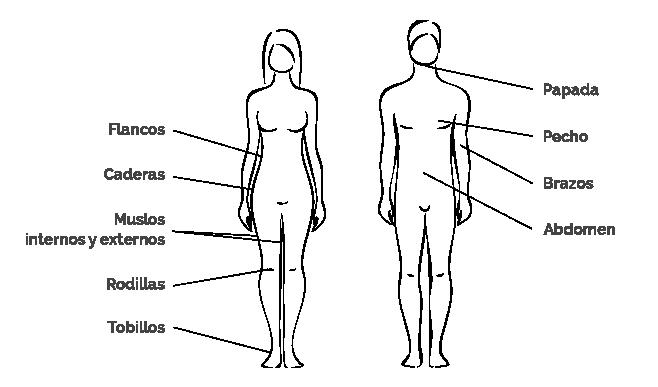 zonas para operar con liposcción