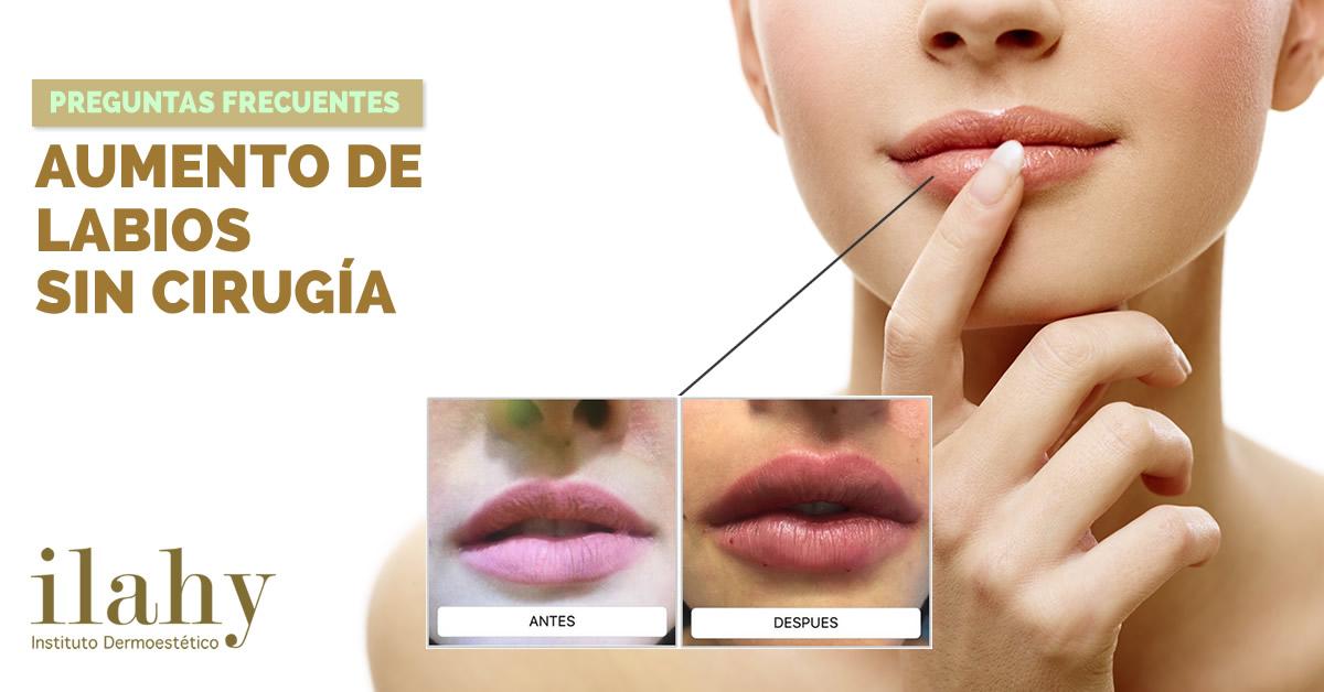 FAQ\'S Preguntas frecuentes sobre el aumento de labios sin cirugía