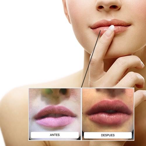FAQ'S de aumento de labios sin cirugía