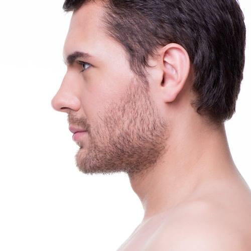 """Intervju med dr. Mónaco: """"Den nye belkyra-behandlingen mot dobbelthake er svært etterspurt blant menn"""""""