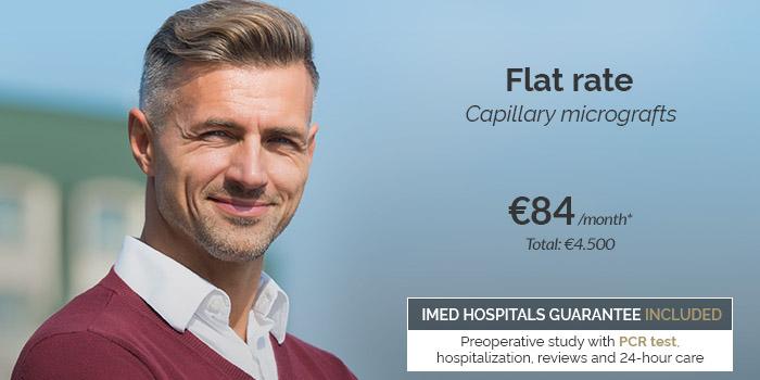 hair micrografts price 2021