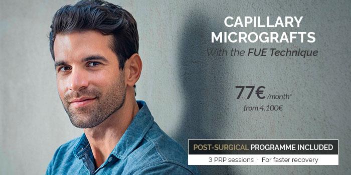 capillary microtransplant price 2020
