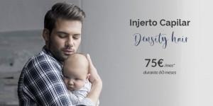Injertos capilares precio 2021