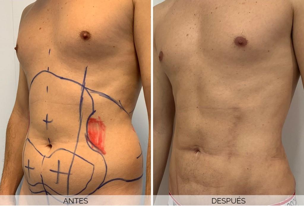 resultados liposuccion