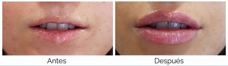 aumento de labios ejemplo