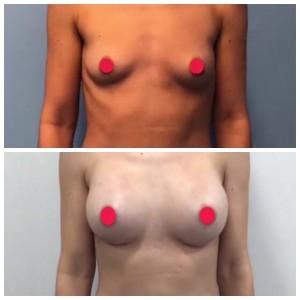 Antes y después con prótesis redondas