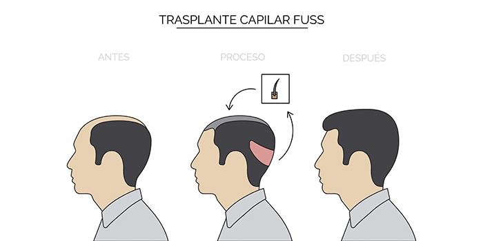 trasplante capilar