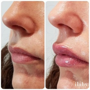 aumento labios antes despues