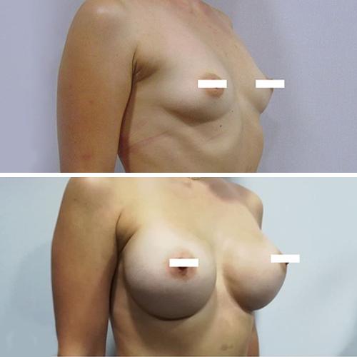 Antes y después de un aumento de pecho en Ilahy