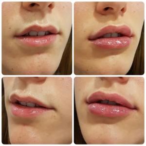 aumento de labios Benidorm