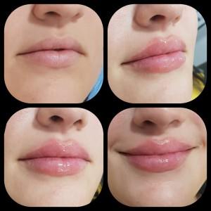 Aumento de labios en elche