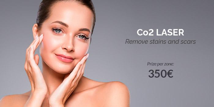 laser CO2 price 2020