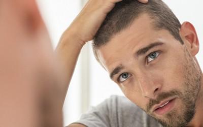 ¿Qué es un injerto capilar?