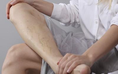 ¿Por qué aparecen las varices en las piernas?
